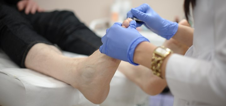 Удаление подошвенных новообразований в медицинском центре «MyDerm»