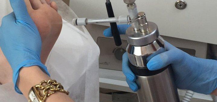 Удаление до 10 кожных новообразований в медицинском центре «MyDerm»