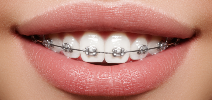 Скидка до 81% на установку брекет-системы в клинике стоматологии и косметологии «Kosmo-Dent»