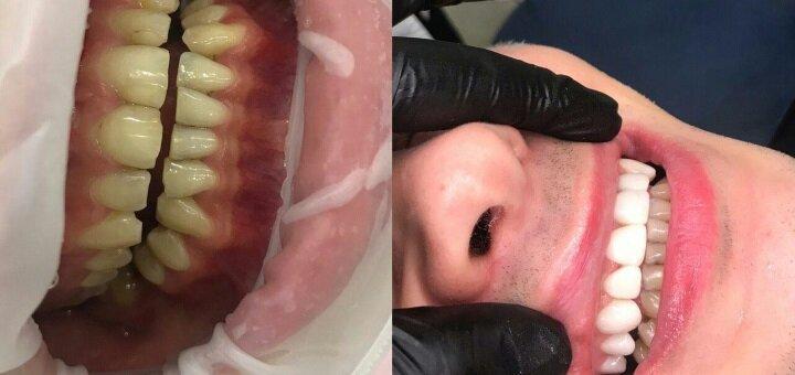 Скидка до 38% на установку композитных виниров в стоматологической клинике «TenDDenT»