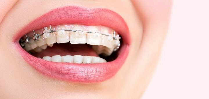 Скидка до 51% на установку брекет-системы в стоматологии «Ваш стоматолог»